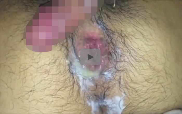 【無修正ゲイ動画】アナルをヒクヒクさせて腸内に種付けされた精液を逆流させている瞬間をまとめた個人撮影モノ映像ww
